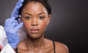 Chirurgie Esthétique Bénéfice