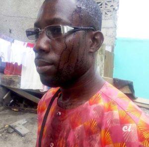 Agression journaliste Côte d'Ivoire