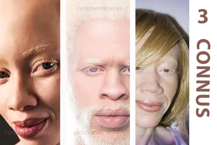 Albinos Mannequin Afrique